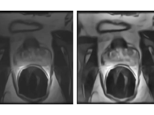 Multi-Resolution Level Sets with Shape Priors: A Validation Report for 2D Segmentation of Prostate Gland in T2W MR Images