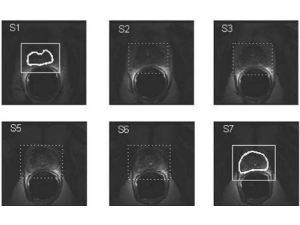 Inter-slice Bidirectional Registration-based Segmentation of the Prostate Gland in MR and CT Image Sequences